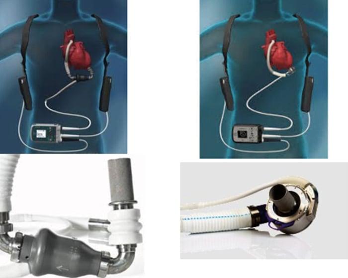 Moderna hjärtpumpar ger ökad livskvalitet vid svår hjärtsvikt