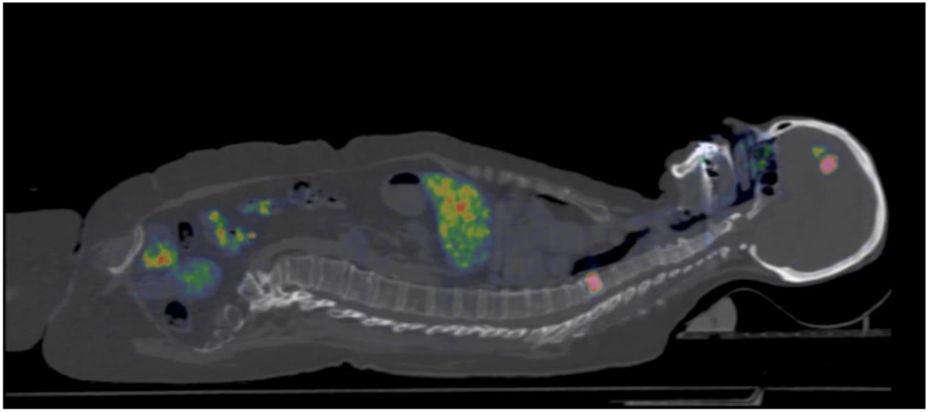 Mer individanpassad behandling av bröstcancer målet för ny studie på Akademiska