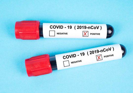 Vårt medfödda immunsystem förvärrar läget vid svår covid-19
